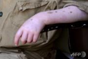 【ブルンジ】15歳のアルビノ少年、切断遺体で見つかる