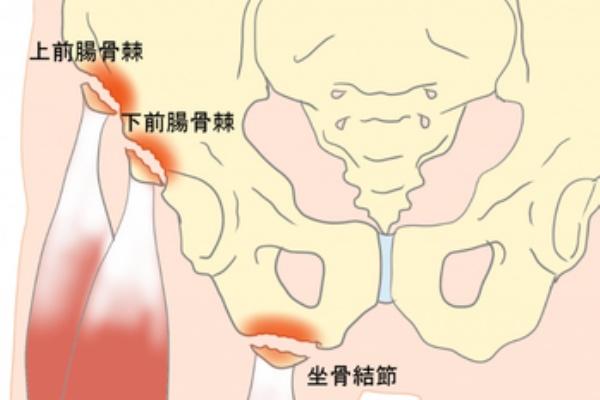 剥離 骨折 股関節