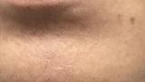 家庭用脱毛器で脱毛して1ヶ月以上放置した口周りがこちらwww(※画像あり)