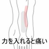 『肘・前腕部の張り感 室蘭登別すのさき鍼灸整骨院 症例報告』の画像