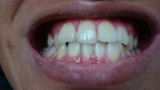 歯医者「あぁ~これはもう駄目だわ…なんでもっと早く来ないの…」ぼく「無神経なこと言わないで下さい…」