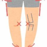 『ヒザの痛みとO脚の関係は?』の画像
