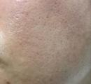 【画像】5000円の化粧水と3000円の乳液を1ヶ月使った結果wwwwwwwwwwww