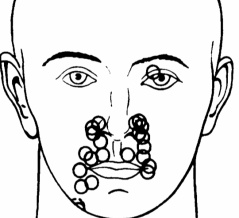 三叉神経痛のTrigger zoneはどこ?