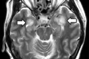 【新型コロナ】「58歳女性の脳が壊死」米ミシガン州で世界初