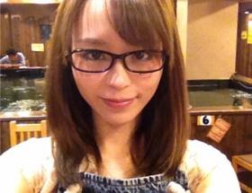 【悲報】平野綾さんがハゲてきた件wwwww