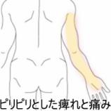 『腕の痛みや痺れ、症例報告です!』の画像
