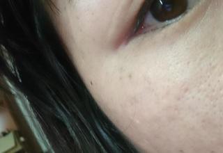 二重瞼に整形しただけで人生変わった女だけど質問あったら受け付けるよ