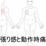 『スマッシュ動作時痛 室蘭登別すのさき鍼灸整骨院症例報告』の画像