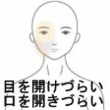『顎関節症・瞼が重たい 室蘭登別すのさき鍼灸整骨院 症例報告』の画像