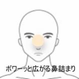 『鼻詰まり 室蘭登別すのさき鍼灸整骨院 症例報告』の画像