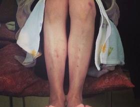 【画像】真木よう子の足がヤバイwwww謎のアザとキズだらけwwww