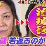 『ジャガー横田息子受験結果の進学はどこ?」 顔の歪みの若返り手術結果を公開【画像】』の画像