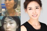 韓国人女子大生 両エラを切除後に死亡