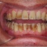 『着色除去とホワイトニングの違い【ふかさわ歯科クリニック】』の画像