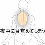 『就寝中に起こる背部痛 室蘭登別すのさき鍼灸整骨院 症例報告』の画像