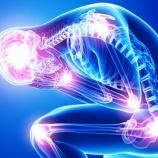 『線維筋痛症の治療に新たな光』の画像