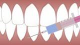 【悲報】営業ワイくん「外回りの空いてる時間にこっそり歯医者行っちゃうンゴねえ!w」 →