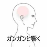 『側頭部コメカミ付近の頭痛 室蘭登別すのさき鍼灸整骨院 症例報告』の画像