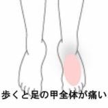 『モートン病、足の甲の痛み 室蘭登別すのさき鍼灸整骨院 症例報告』の画像