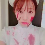 『【乃木坂46】衝撃!能條愛未、血まみれに・・・』の画像