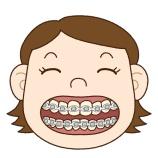 『矯正で歯を抜く?抜かない?【篠崎 ふかさわ歯科クリニック】』の画像