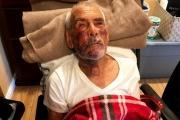 【本場ヘイトクライム】メキシコから訪れた高齢男性、散歩中に襲われ負傷「メキシコに帰れ!」コンクリートブロックで襲撃  米LA郊外