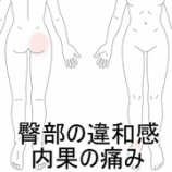 『お尻と内くるぶしが痛む 室蘭登別すのさき鍼灸整骨院症例報告』の画像