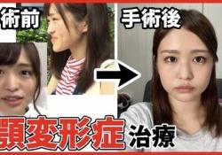 【朗報】伊藤かりんちゃん、赤ちゃんになるwwwwwwwwwwww