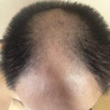『頭髪で気になる事』の画像