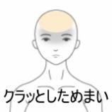 『急にきためまい 室蘭登別すのさき鍼灸整骨院 症例報告』の画像