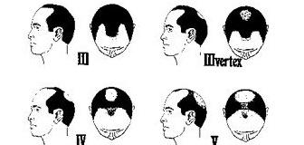 【ハゲ】性器用抗真菌クリーム:モニスタットで髪が生える!?と発表される