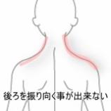 『後ろを振り向くことが出来ない 登別室蘭すのさき鍼灸整骨院症例報告』の画像