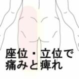 『脚の痛み 室蘭登別すのさき鍼灸整骨院 症例報告』の画像