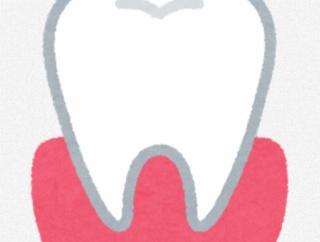 【悲報】ワイ歯肉炎、かなりヤバい状況になる
