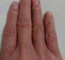 【画像】やべーーーー!!コロナ感染対策で手洗いばかりしてたら手がおっさんみたいになってきたwww