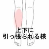 『ふくらはぎの痛み 室蘭登別すのさき鍼灸整骨院 症例報告』の画像