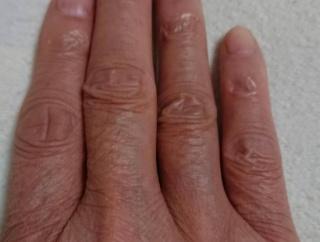 【画像】コロナ対策で手洗いばかりしてたら手がおっさんみたいになってきたwww