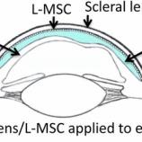 『「目は心の窓」:眼球表面の損傷の治癒を促進させるコンタクトレンズ』の画像