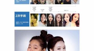 【悲報】韓国の整形技術が限界突破
