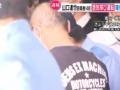 【悲報】山口達也さんの頭皮(画像あり)