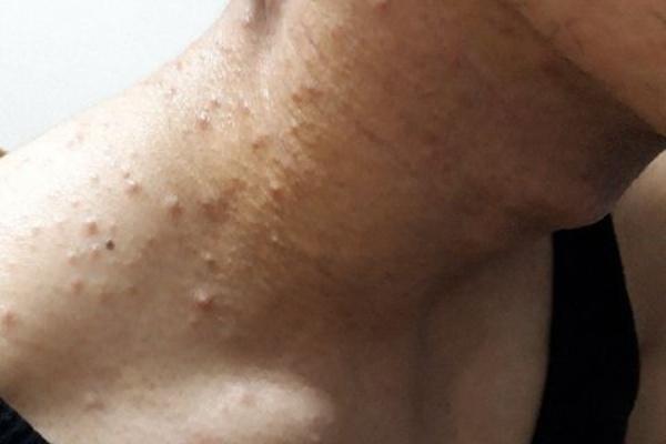 風呂 上り 蕁 麻疹