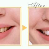 『今年も行います!ホワイトニングキャンペーン☆彡【篠崎ふかさわ歯科クリニック】』の画像