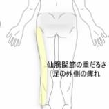 『足の痺れ 室蘭登別すのさき鍼灸整骨院 症例報告』の画像