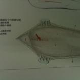 『上腕骨後方進入法』の画像