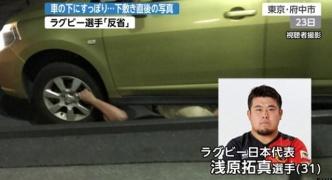 車に轢かれて軽傷だったラグビー選手の画像wwwwww