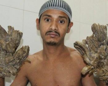 【皮膚病】樹木状(手が樹になる病気)が恐ろしい・・・(画像あり)