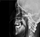 3Dプリンタで作ったチタン製の第一/第二脊椎骨を移植