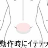 『ギックリ腰の症例 室蘭登別すのさき鍼灸整骨院症例報告』の画像