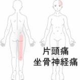『片頭痛&坐骨神経痛 室蘭登別すのさき鍼灸整骨院 症例報告』の画像